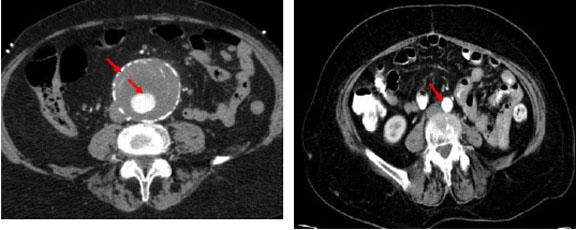 Abdominal Aortic Aneurysm - AAA