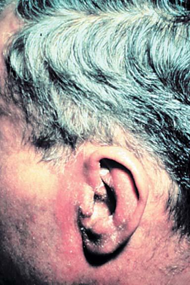 Seborrheic Dermatitis – Toronto Notes