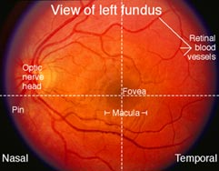 Optic Nerve - Fundoscopy