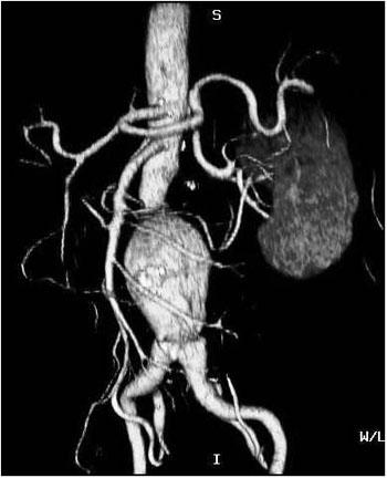 Angiogram - CT