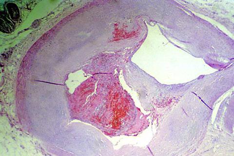 Atherosclerosis histology
