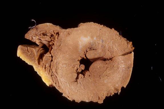 Hypotrophic Cardiomyopathy