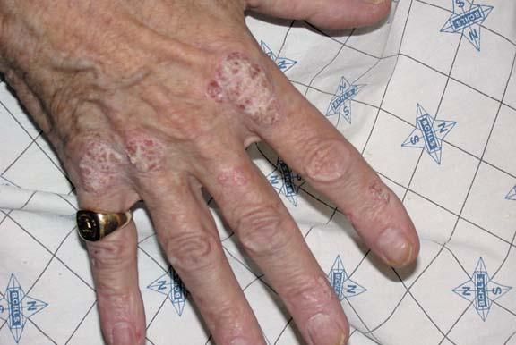 Plaque Psoriasis - Hand