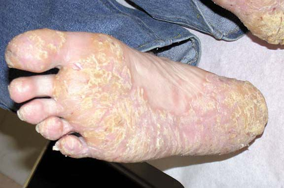 Psoriasis of the Soles