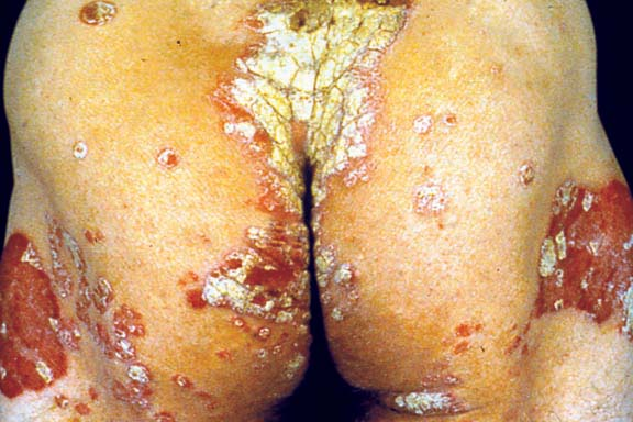 Plaque Psoriasis - Body