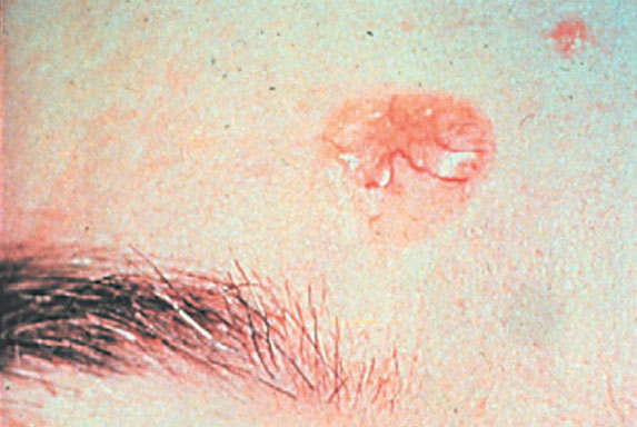 Basal Cell Carcinoma No. 2