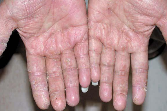 Adult Atopic Dermatitis