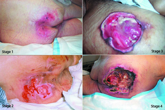 Pressure Ulcers – Toronto Notes
