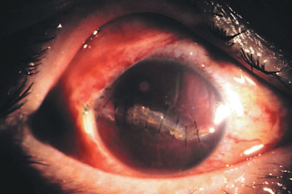 Corneal Laceration
