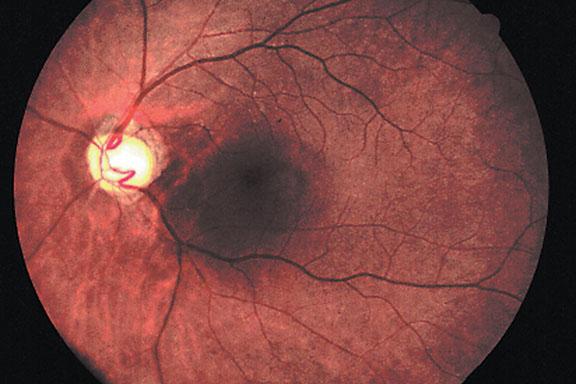Optic Atrophy