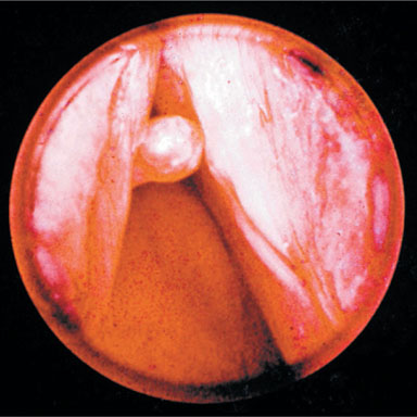 Vocal Cord - Nodule