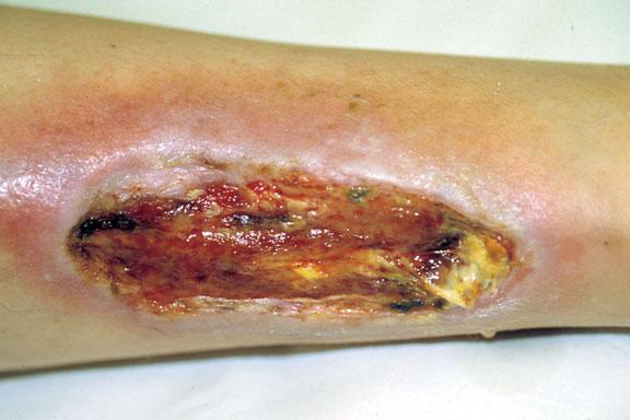 Arterial Ischemic