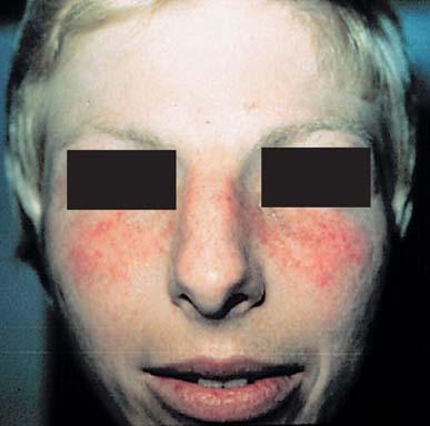 Systemic Lupus Erythematosus - SLE