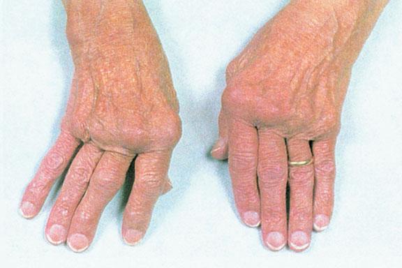 Rheumatoid Arthritis No. 1