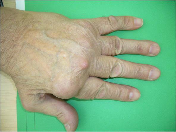 Rheumatoid Arthritis No. 2