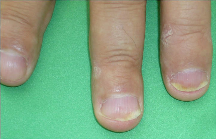 Psoriatic Arthritis - Onycholysis