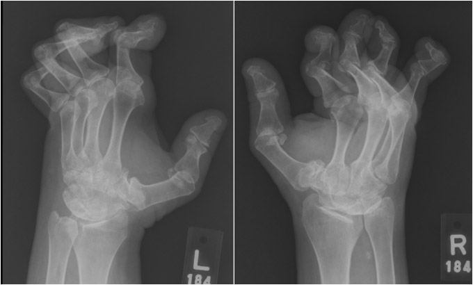 Bilateral hands in a patient with lupus