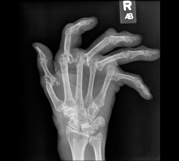 Right hand radiograph in a patient with advanced rheumatoid arthritis