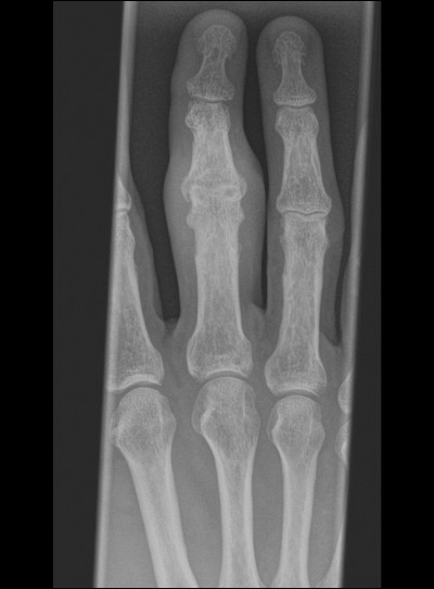 Left long finger radiograph in a patient with psoriatic arthritis and dactylitis