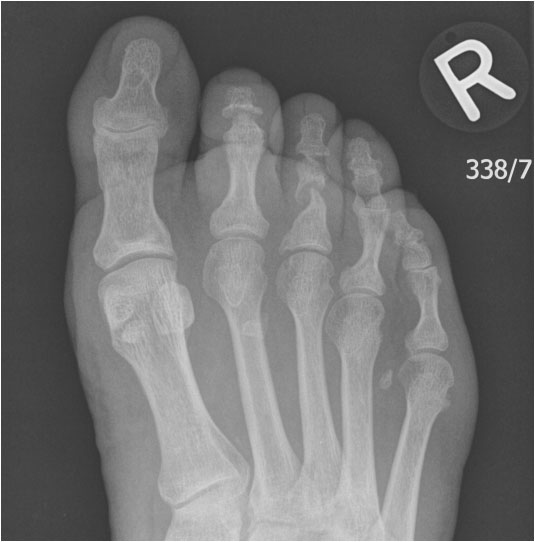 Right foot radiograph in a patient with psoriatic arthriti