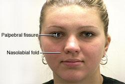 Facial Nerve - Motor